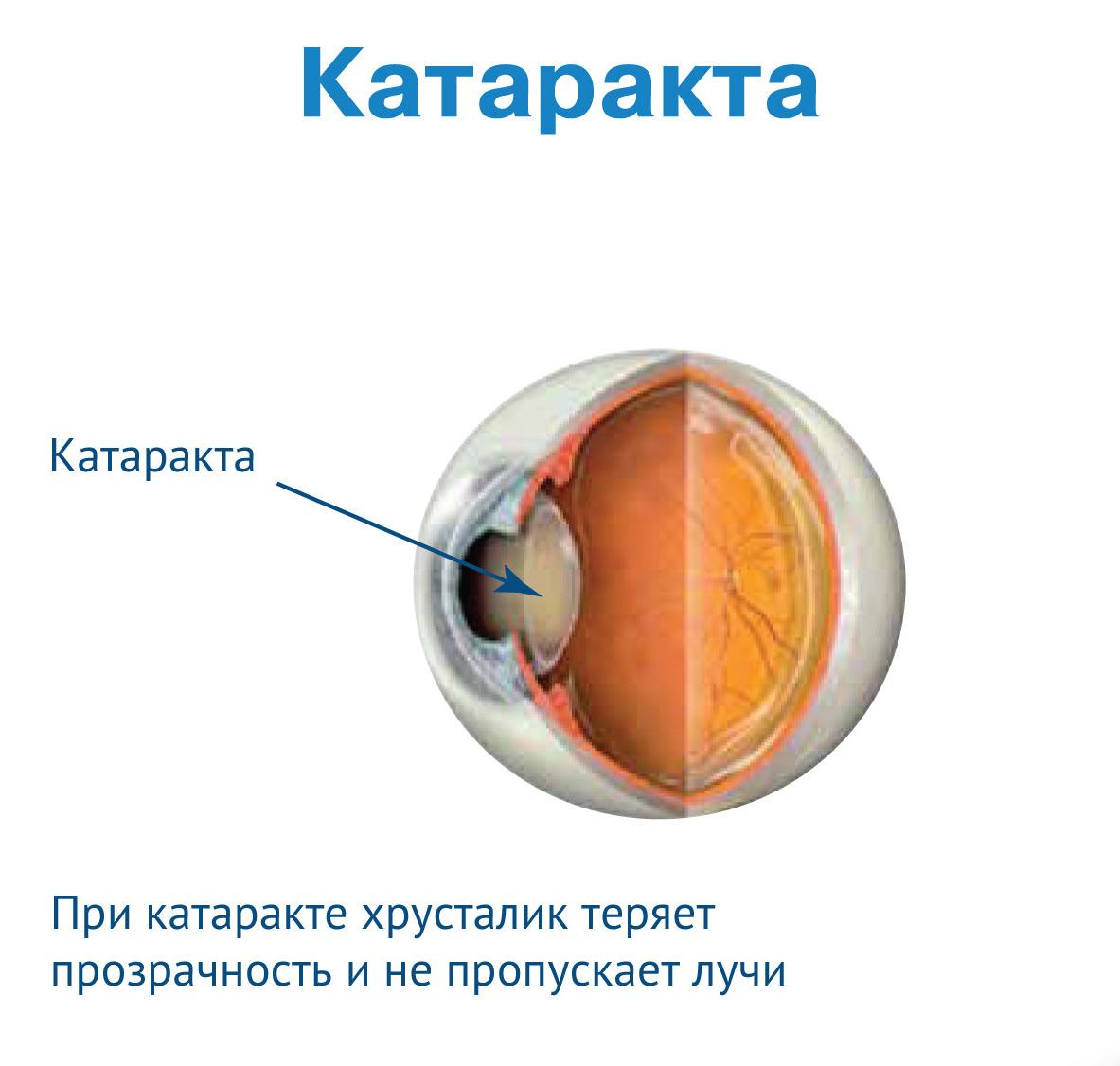 Где можно удалить катаракту лазером