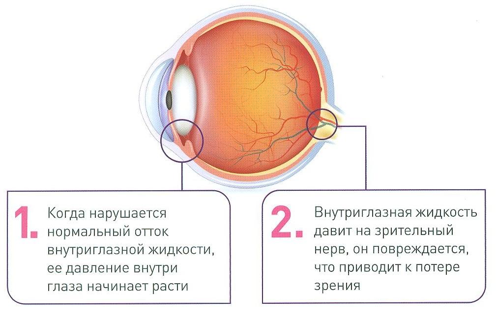Этапы глаукомы