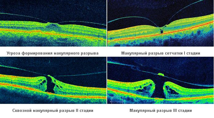 Как лечить макулярный разрыв сетчатки глаза